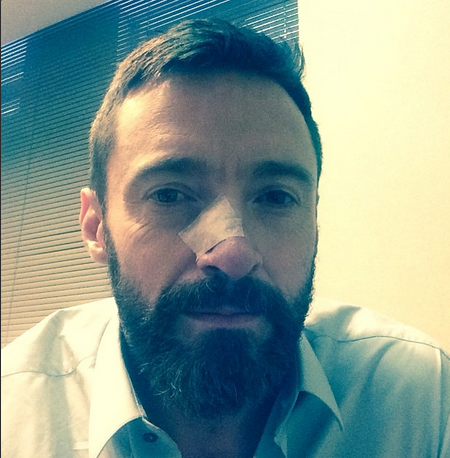 Hugh Jackman Has Kicked Skin Cancer Again!
