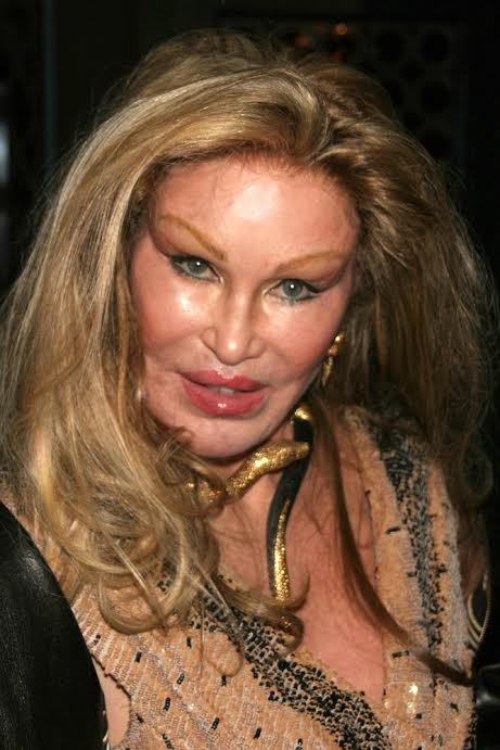 Six MAJOR Celebrity Cosmetic Surgery Disasters!