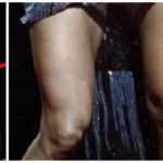 Carrie Underwood's Knee