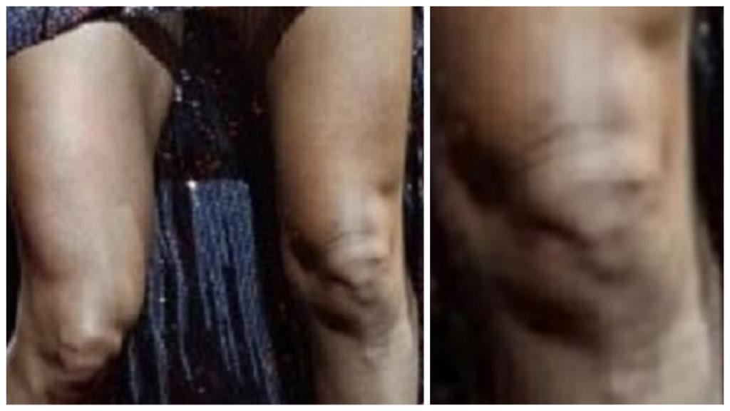 Carrie Underwood's Knee
