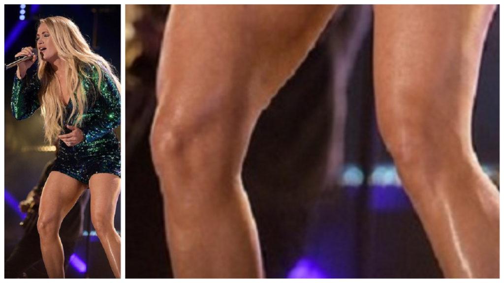 Carrie Underwood's Knees